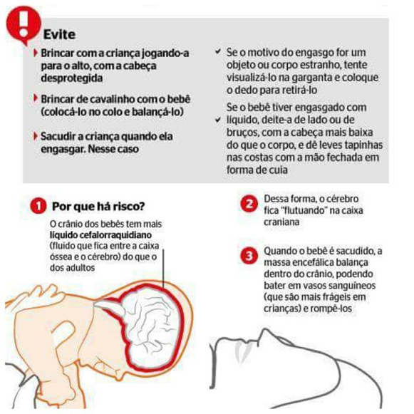 sindrome do bebe sacudido