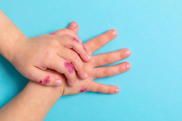 Doenças de pele na infância
